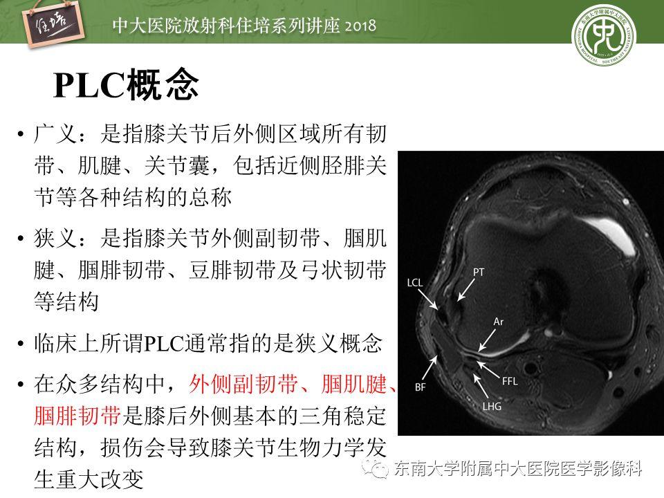 精彩推荐 | 膝关节的正常MR解剖及常见变异
