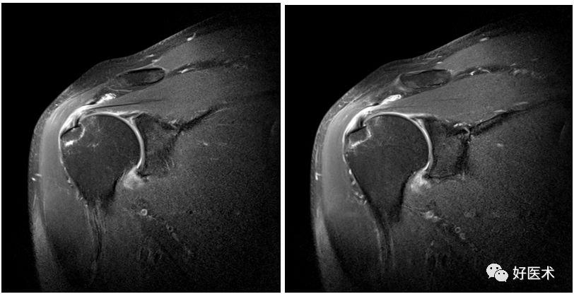 肩关节损伤的影像学诊断技巧,看完我就收藏了!